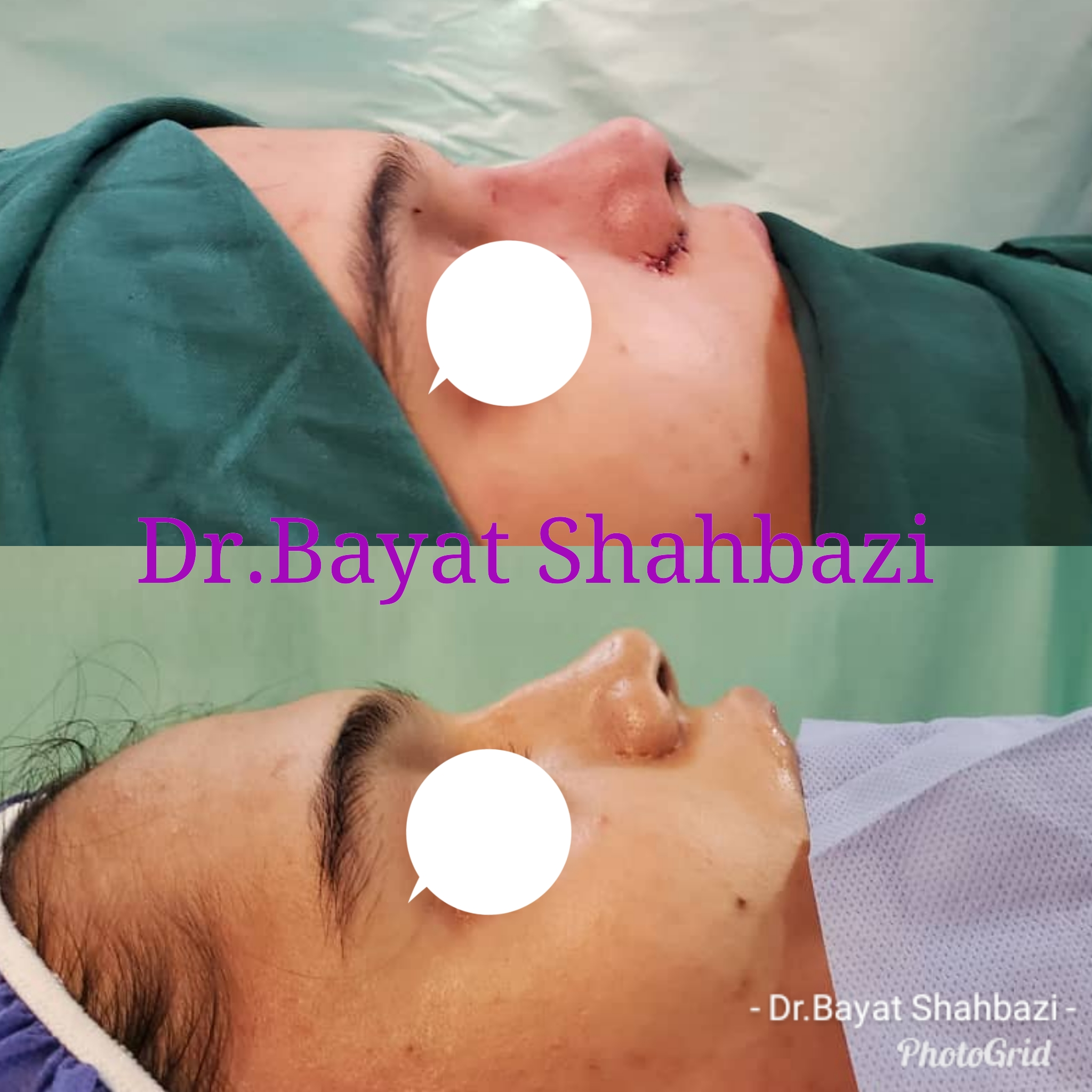 the best Nose Surgery, rhinoplasty surgery, Facelift and Necklift, Otoplasty, Ear Cosmetic Surgery, Forehead lift, Body contouring, Facelift surgery, Facial prostheses, Body contouring, Tummy tuck and Abdominoplasty in iran is Dr bayatshahbazi, drbayatshahbazi, Dr bayat shahbazi